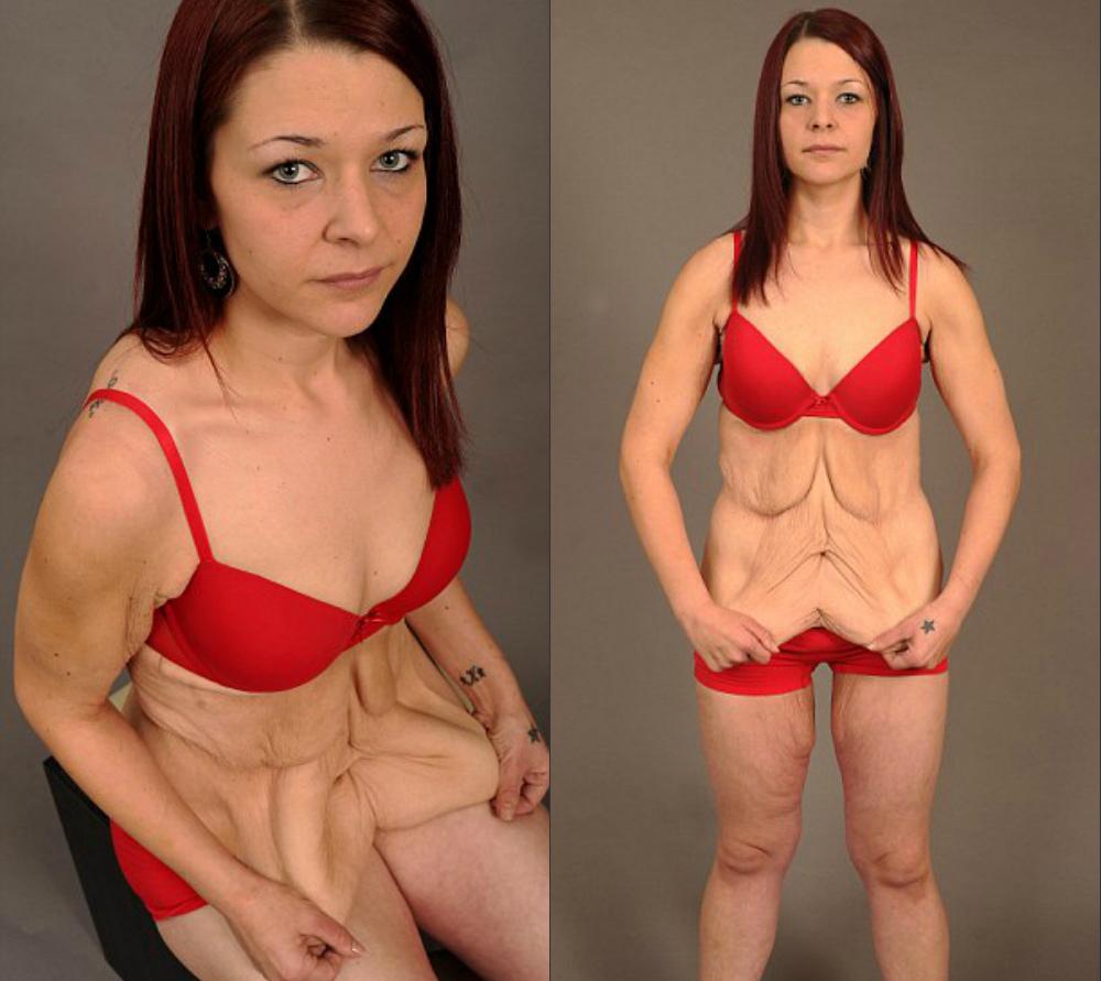 Причины резкого похудения веса